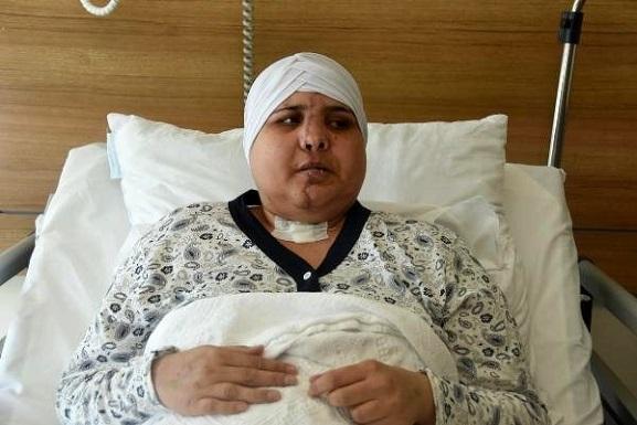 Kazada İkiye Ayrılan Yüzü 10 Saatlik Ameliyatta Birleştirildi
