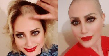 Kadına Şiddete Hayır Dedi Saçlarını Kazıttı