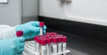 Hemofili Üzerine Türkiye'de Yapılan Araştırma Sonuçları Açıklandı